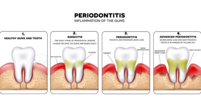 Gum or Periodontal Disease