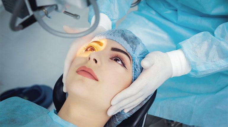 Lasik-Eye-Surgery